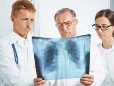 Признаки рака легких на ранних и поздних стадиях