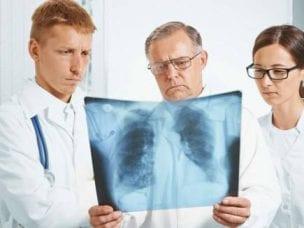 Признаки рака легких, первые симптомы и проявления