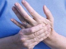 Псориатический артрит – лечение заболевания