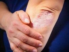 Псориаз – причины возникновения, как лечить препаратами и народными средствами