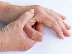 Ревматоидный артрит ‒ симптомы у детей и взрослых, стадии развития болезни