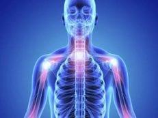 Сцинтиграфия костей скелета — показания, подготовка и результат