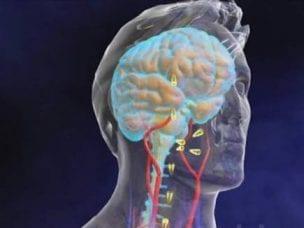 Серозный менингит у детей и взрослых - симптомы, лечение и последствия