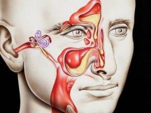 Сфеноидит острый и хронический - симптомы и лечение