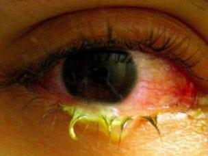 Симптомы аллергического конъюнктивита у детей и взрослых