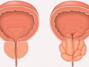 Симптомы бактериального простатита - признаки острого и хронического