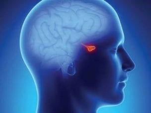 Симптомы микроаденомы гипофиза - первые проявления заболевания и формы