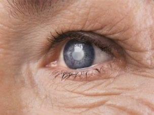 Симптомы врожденной катаракты глаза - причины помутнения хрусталика