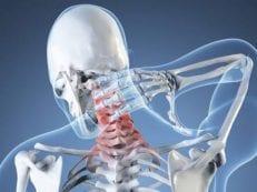 Синдром вертебро-базилярной артериальной системы: причины и диагностика