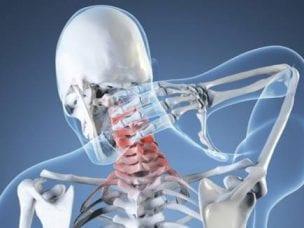 Синдром вертебро-базилярной артериальной системы: симптомы и лечение
