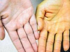 Синдром Жильбера – что это такое, описание и анализ крови на выявление, способы терапии и диета