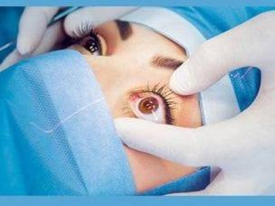 Склеропластика глаз у детей и взрослых
