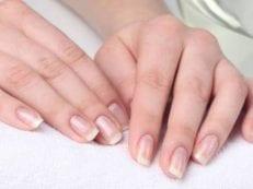 Слоятся ногти на руках — что делать в домашних условиях, терапия медикаментами и народными средствами