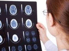 Субкомпенсированная гидроцефалия головного мозга