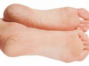 Трещины на пятках - лечение в домашних условиях эффективными средствами и методами