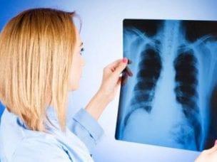 Туберкулезный плеврит легких - лечение