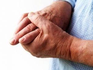 Виды артритов и классификация заболевания - симптомы, диагностика и лечение