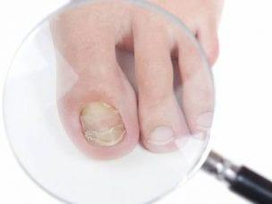 Виды грибка ногтей на ногах - причины и симптомы заражения, стадии развития, диагностика и способы терапии