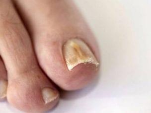 Виды грибка ногтей по локализации, типу возбудителя и стадии развития - признаки заболевания, методы лечения