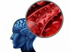 Виды инсульта — ишемический, геморрагический, спинальный, факторы риска и механизм развития, последствия