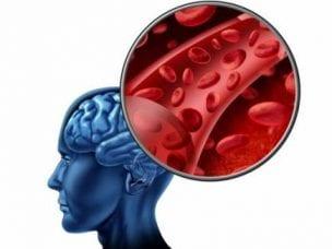 Виды инсульта - причины и симптомы заболевания, диагностика, способы лечения и профилактические меры