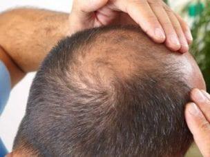 Виды облысения у мужчин, стадии, причины и лечение