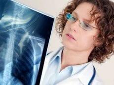 Внебольничная пневмония — симптомы, лечение и профилактика