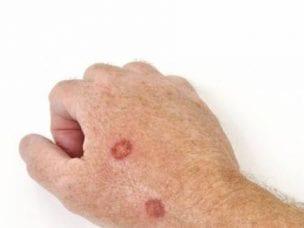 Язвы на коже - причины появления, виды и симптомы, диагностика