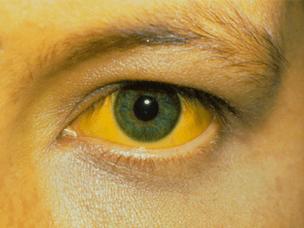 Причины и лечение желтых глаз у человека