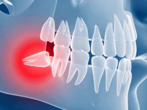 Особенности прорезывания и удаления зубов мудрости