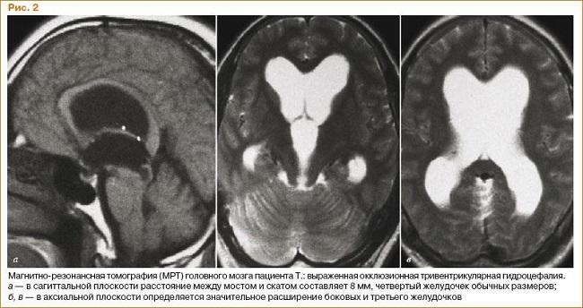 МРТ мозга при гидроцефалии