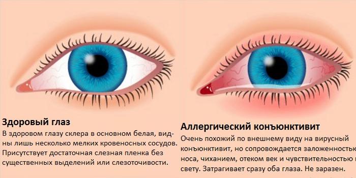 Здоровый глаз и аллергический конъюнктивит