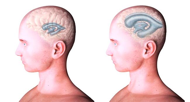 Изменения мозга при гидроцефалии