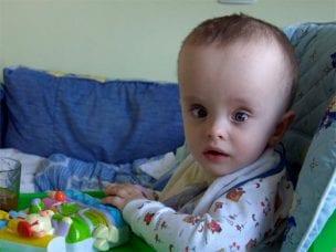 Компенсированная гидроцефалия у детей