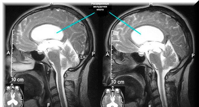 Вид мозга на рентгене