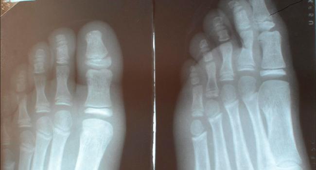 Рентген перелома пальца ноги