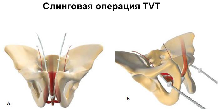 Суть слинговой операции