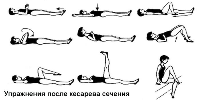 Упражнения после кесарева сечения