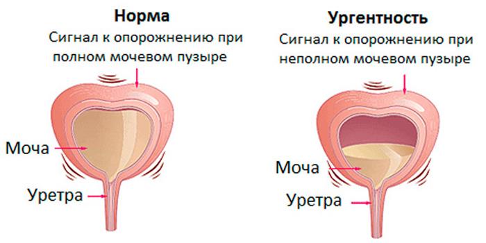 Норма и ургентность