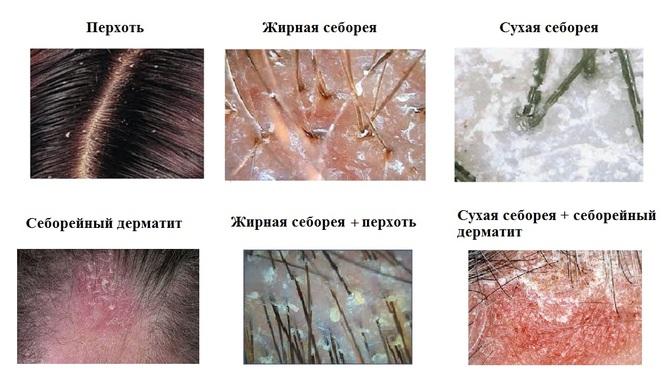 Кожные заболевания волосистой части головы