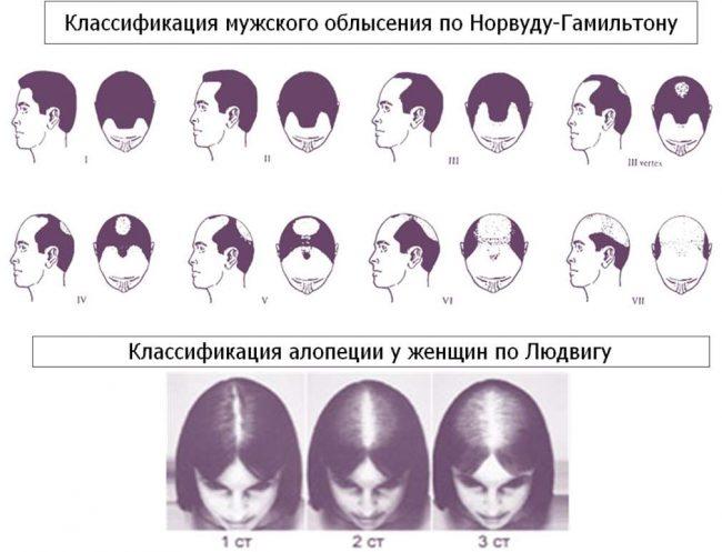 Стадии алопеции у мужчин и женщин