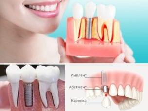 Виды и установка зубных имплантов