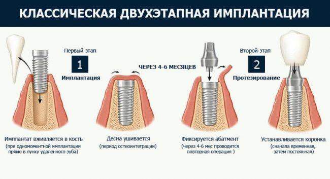 Классическая двухэтапная имплантация