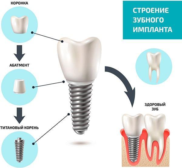 Строение зубного импланта
