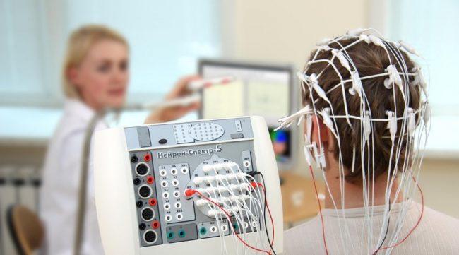 Электроэнцефалография при амнезии