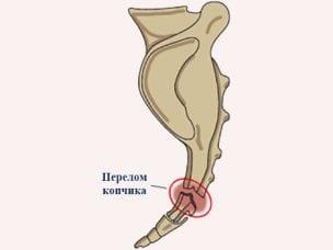Перелом копчика – лечение и первая помощь