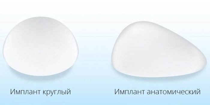 Круглый и анатомический импланты