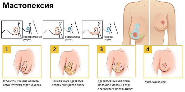 Порядок проведения операции