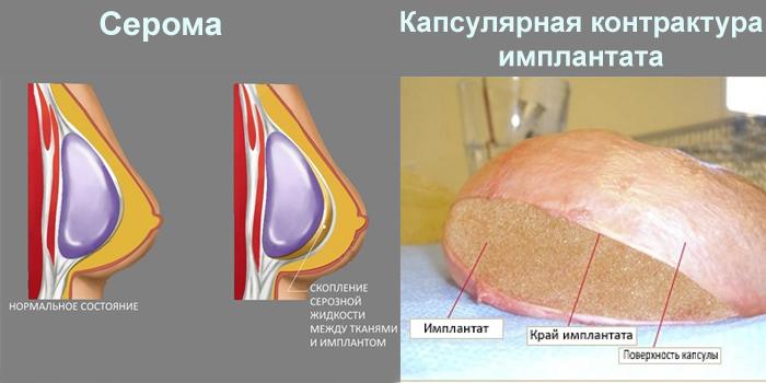 Серома и капсулярная контрактура имплантата