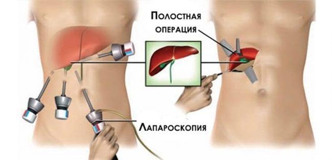 Методы удаления желчного пузыря